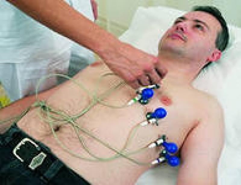 Электрокардиограмма (Экг)